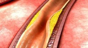 diagram of blockage in an artery