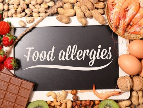 sign reading food allergies surrounded by food